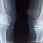 Canva - A Bone Xray-min